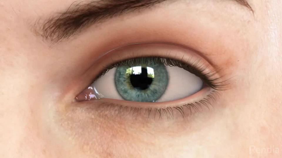 Òptica Gràcia - Què és el Glaucoma